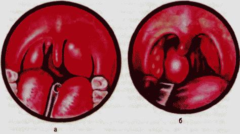 паратонзиллярный абсцесс в горле фото